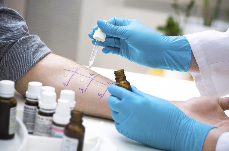 test-cutaneo-alergia